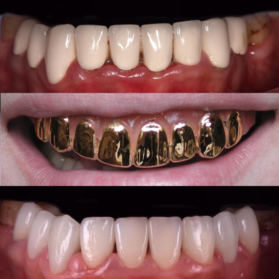 Металлокерамические коронки для зубов и их минусы: фото протезов от Dominanta74